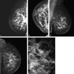 Cancer inflammatoire du sein: ces signes indiquent une tumeur